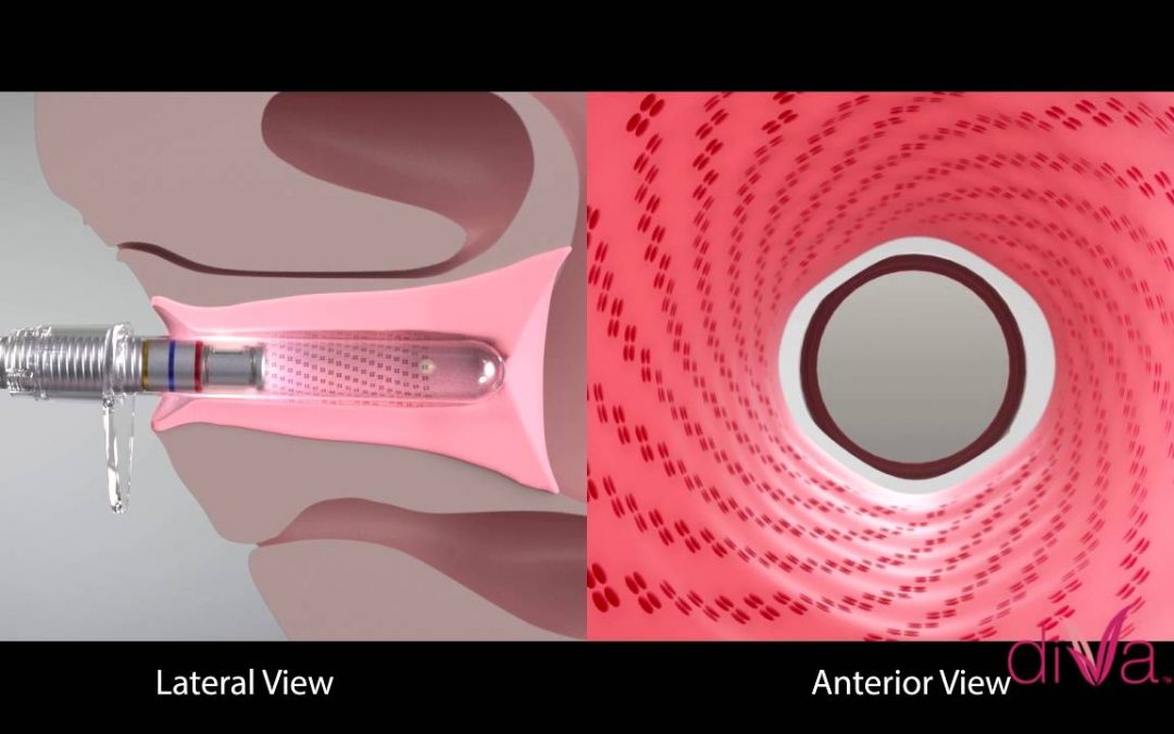 What is Non-Invasive DiVa Laser Treatment, How Does it Work?